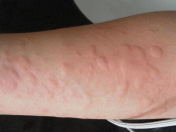 荨麻疹的预防