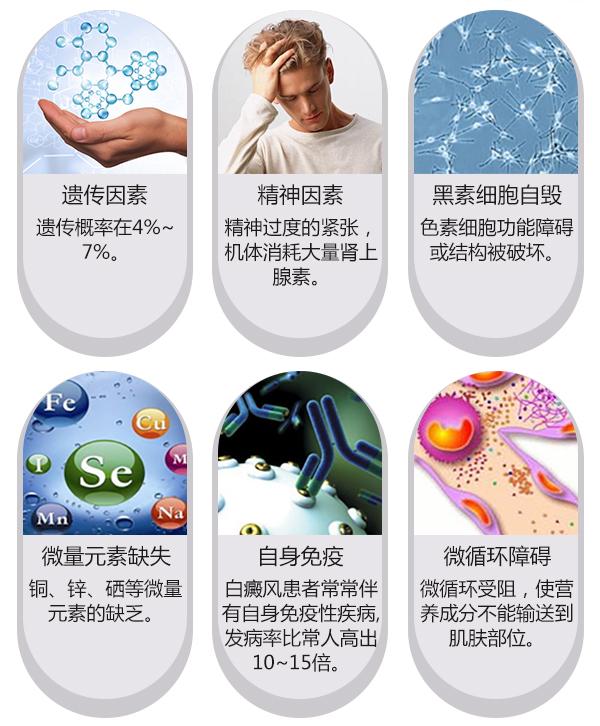 幼儿白癜风的诱因 幼儿白癜风发病的四大诱因