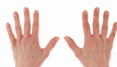 手足癣有哪些症状
