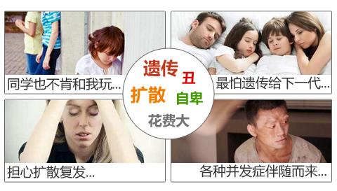脸部的白癜风会给患者带来那些伤害?