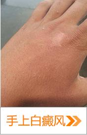 手背白癜风怎么治疗好得快呢?