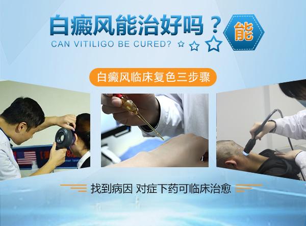 孕妇白癜风在治疗的时候要注意什么
